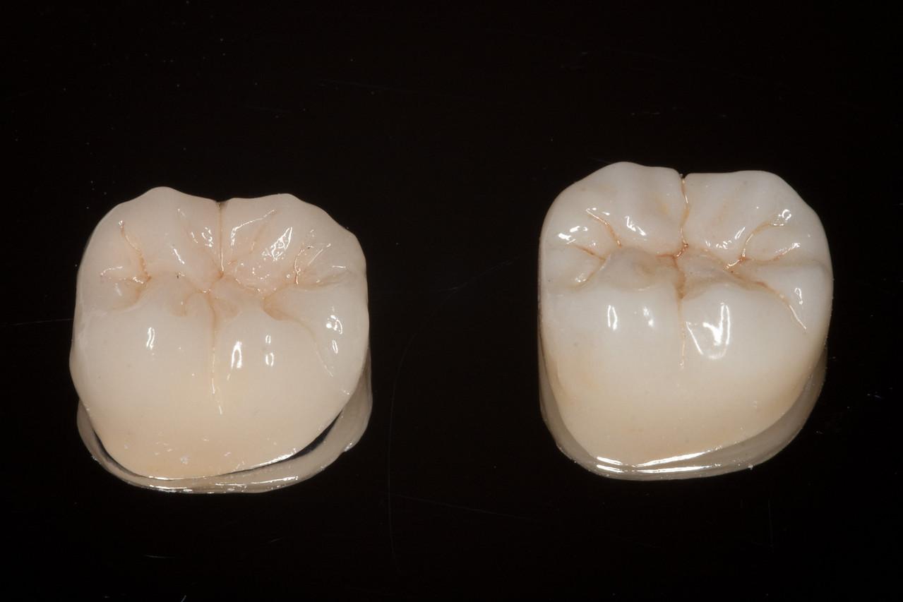 Standard PFM crown (left) vs metal free Bruxzir crown (right)