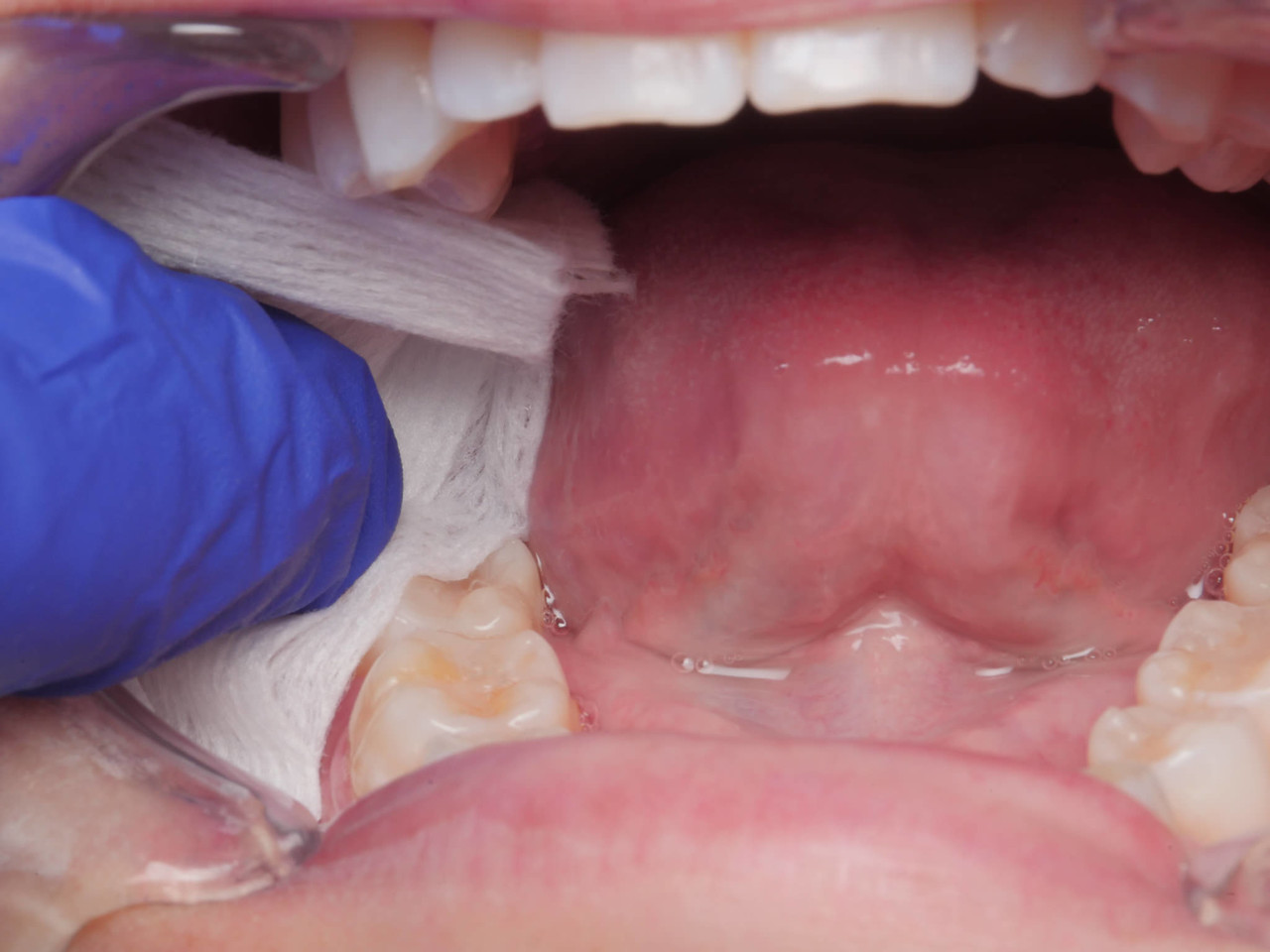 Gently apply a 2x2 gauze to lightly dry out the mucosa.  You don't want to dessicate it; just remove the excess saliva