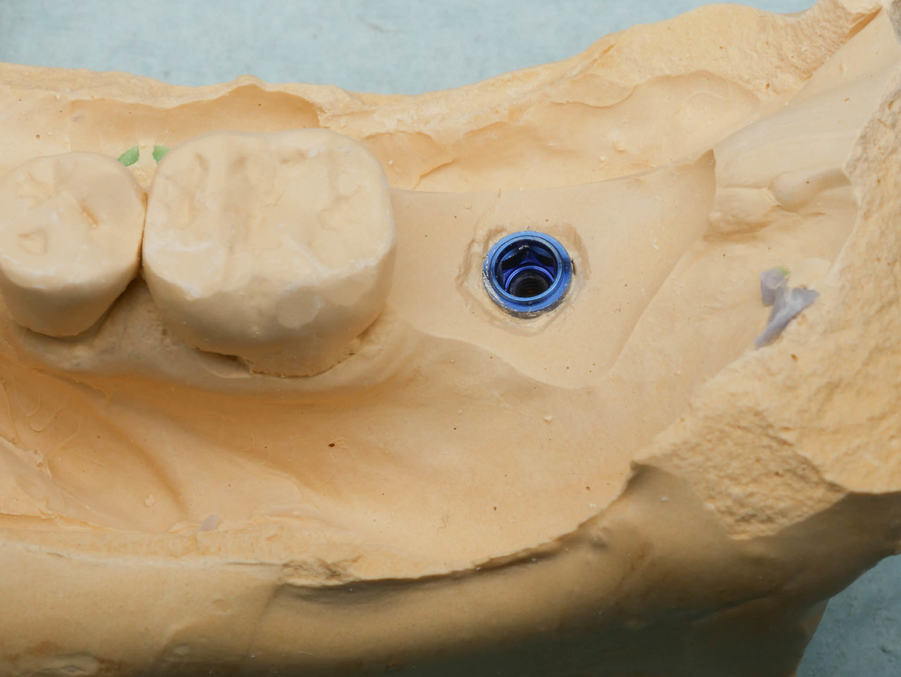 Gingival material was removed and the t-connect (not pictured) was attached to scan with the Cerec Omnicam.  Sweden Martina is not officially supported, but a similarly sized tibase was substituted.