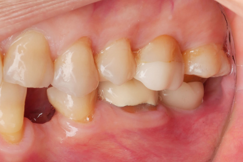 Buccal view of the restored #18 implant.