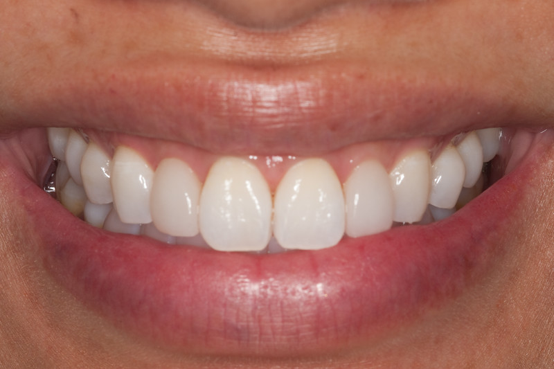 Central incisors at fifth visit.  Pt happy with results and misses coffee.  Sealed with Optiguard after this photo.