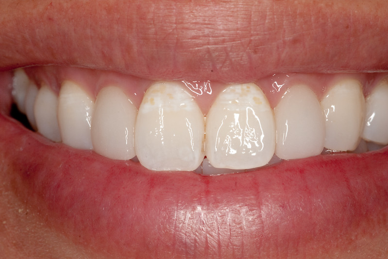 Central incisors before MI Paste treatment.