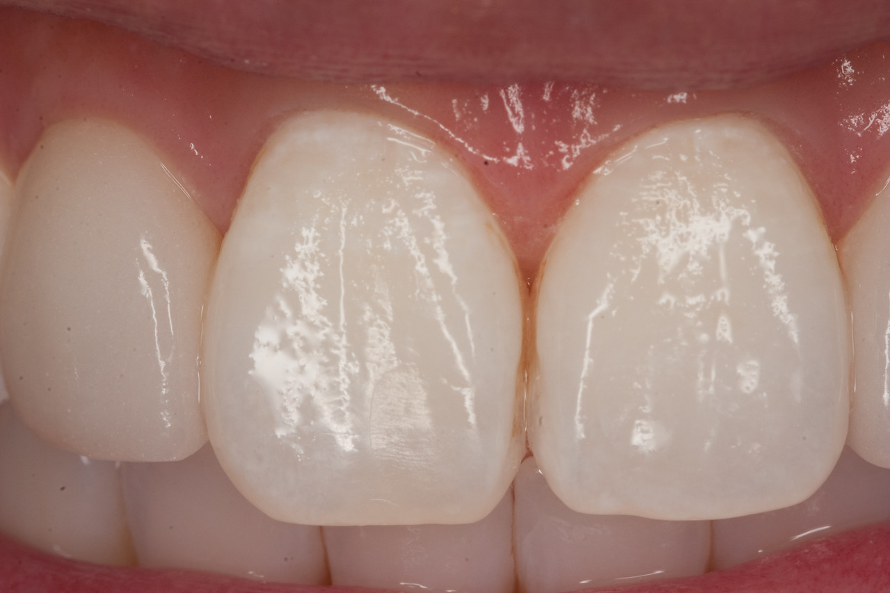 Central incisors after 2nd MI paste treatment.   Coffee stain removal required first.  Etched for two minutes, pumice polished very heavily, coarse prophy polish, medium prophy polish, then applied MI paste for 5 minutes.  Instructed pt to apply to teeth every evening.