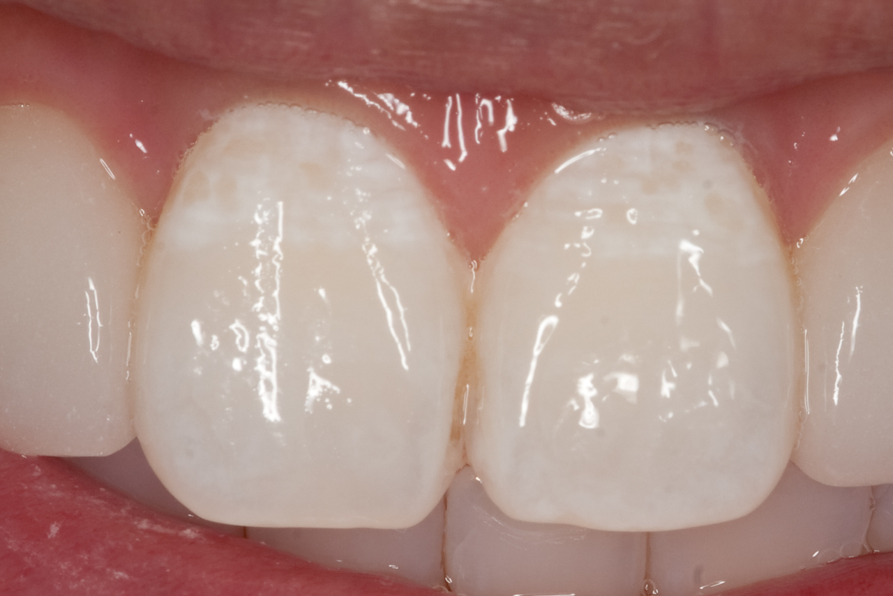 Central incisors after single MI Paste treatment.  Etched for two minutes, pumice polished, applied MI paste for 5 minutes.  Instructed pt to apply to teeth every evening.
