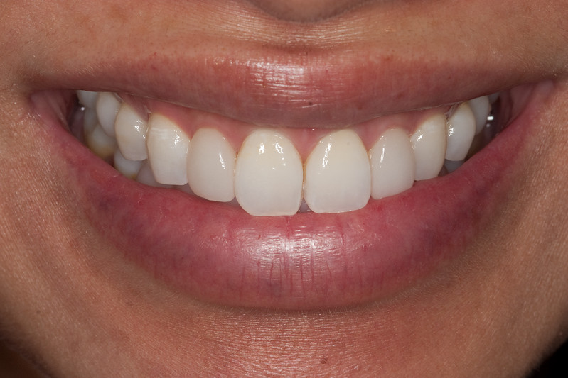 Central incisors after fourth MI paste visit