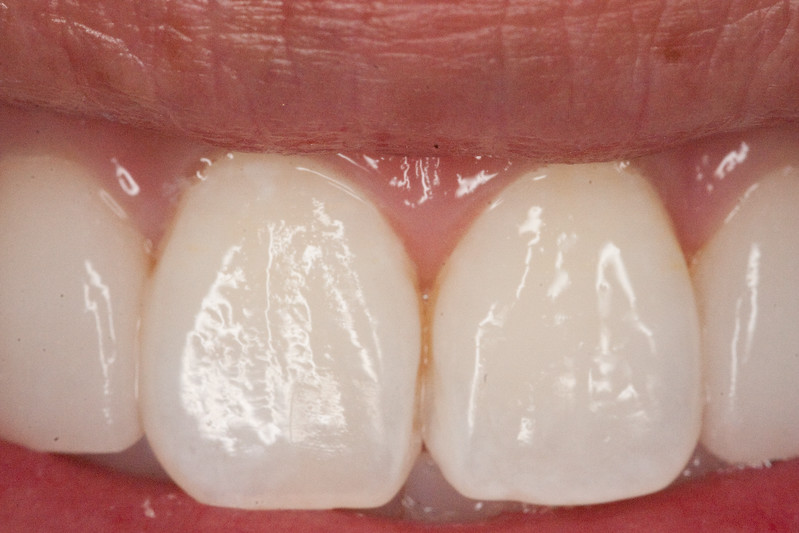 Central incisors after third MI paste visit.  Etched for 2 minutes, pumice polished, then applied MI paste for 5 minutes.  Pt instructed to wear MI paste to sleep every night for 2 weeks.