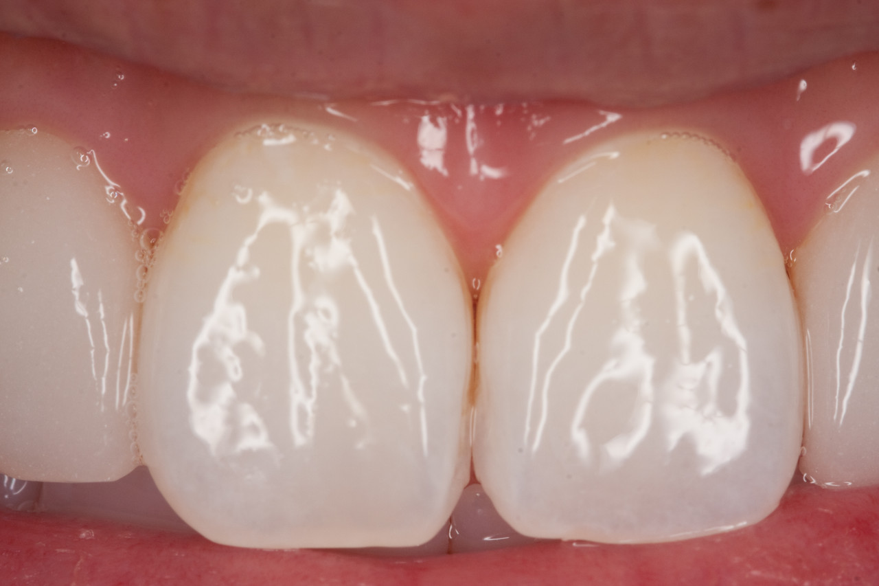 Central incisors at fifth visit.  Patient has been using Ultrabrite whitening toothpaste per our recommendation.  Pt also has been using Premier Bravo 9% hydrogen peroxide gel for 30 minutes per day.  Pt happy with results and misses coffee.  Sealed with Optiguard after this photo.