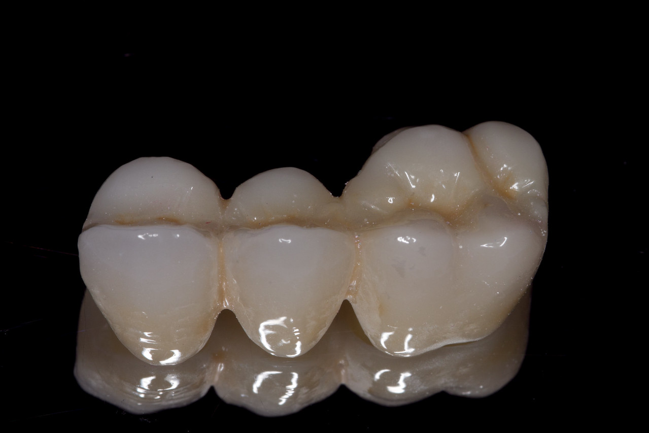 Full contour zirconia bridge, teeth #3-5, with porcelain cutbacks.  Ceramics by Spectrum Dental Laboratory