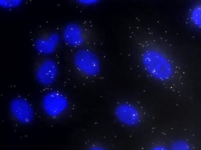 MTOR mRNA