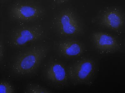 PRDM4 mRNA