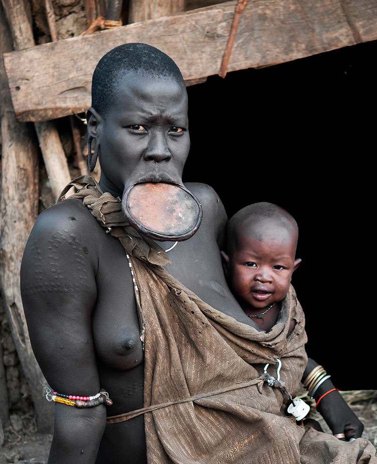 Meet Nania and her son Koro from the Mursi tribe. Nania like most Mursi women likes to wear her lip plate on special occasions. Nania lives in a small hamlet deep in the Mago National Park far away from any reliable source of water. For this reason life in the village can be very hard, especially during the dry season. Nania owns a couple of cows which she milks daily to feed her family. She never boils the milk as she believes that in doing so all the cattle in the village would be cursed and die. Instead she keeps the milk in dirty plastic bottles, given to her by people traveling through the area. The bottles of milk are scattered around inside her warm hut; sometimes for days before it's consumed. Needless to say, this practice, coupled with dirty drinking water from nearby puddles, result in chronic bowel problems for Nania and many other people in the area.