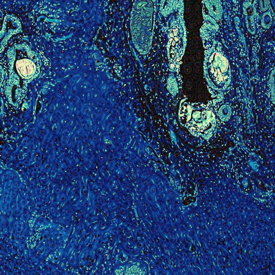 Human Prostate - Detail #1