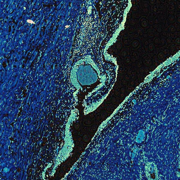 Human Prostate - Detail #3