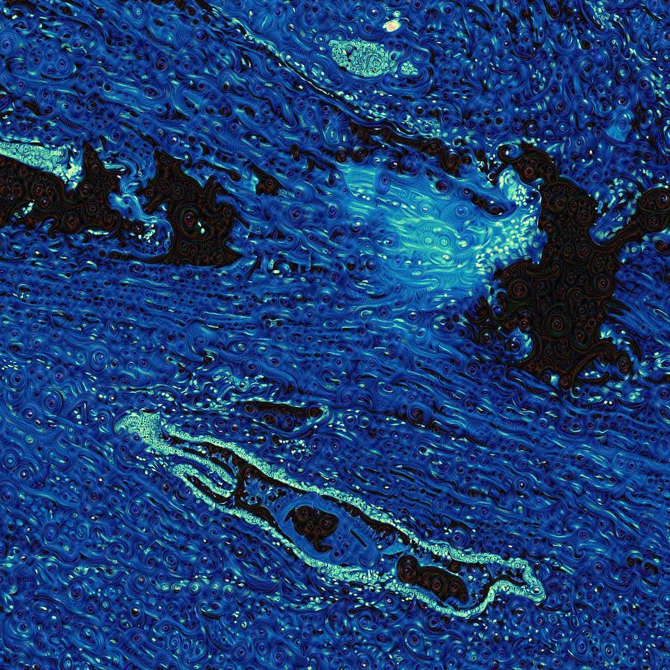 Human Prostate - Detail #4