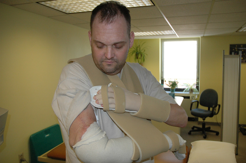 Chris Pollock shows his transplanted right forearm.  He is one of only a few people in the world with two transplanted human hands and a transplanted human forearm.