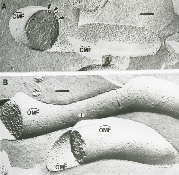 Freeze fracture electron micrograph composite
