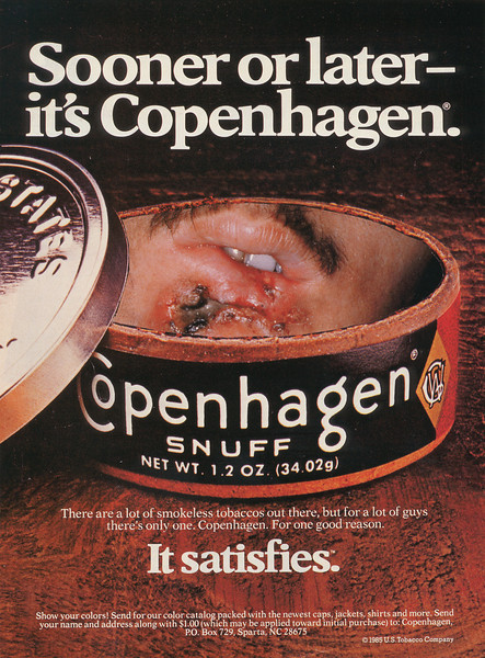 Copenhagen snuff-cancerous mouth