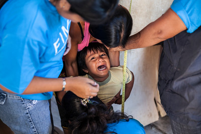 A young child cries as he is weighed and his height is measured.  Malnutrition among the population of Anconcito is at epidemic proportions.
