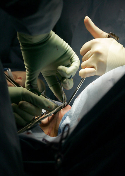 3/15/07 Boston, MA -- The hands of Dr. Atul Gawande and resident Siva Raja work to remove a patient's parathyroid gland at Brigham and Women's Hospital Thursday March 15, 2007. Erik Jacobs for the New York Times.<br /> 30039201A