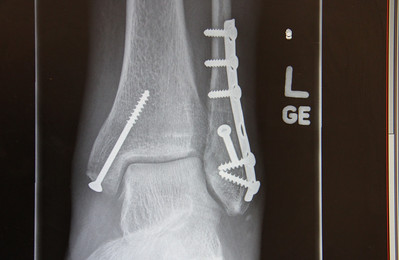 The plate is to the left side of my ankle - my foot is towards the lens.   The break can be seen below the third screw.