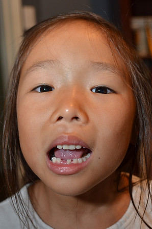 June 28, 2013 - Emily lost her first tooth.
