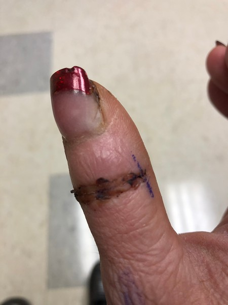 Tig's thumb operation