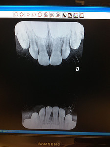 His adult teeth are already waiting!!! A few more years until they are ready to come out!
