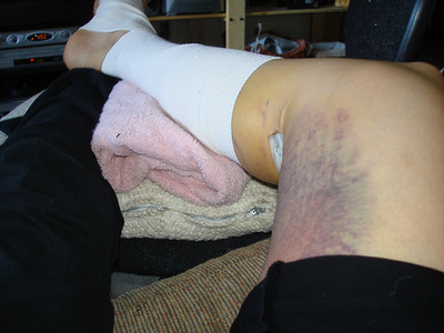 Days after my leg surgery