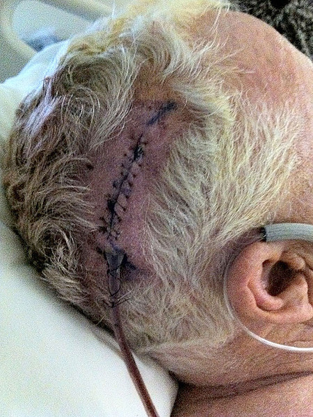 The Doctor drilled a hole the size of a quarter in my head and then covered it with a titanium plate when he was done.  This was in October of 2011.