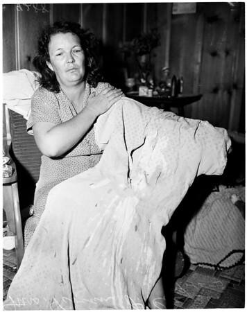 Burglar throws acid in woman's face, 1951