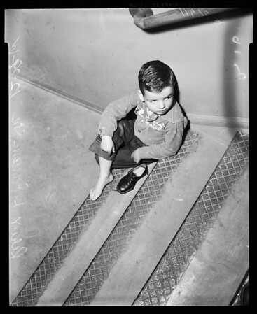 Chimpanzee bite suit, 1955