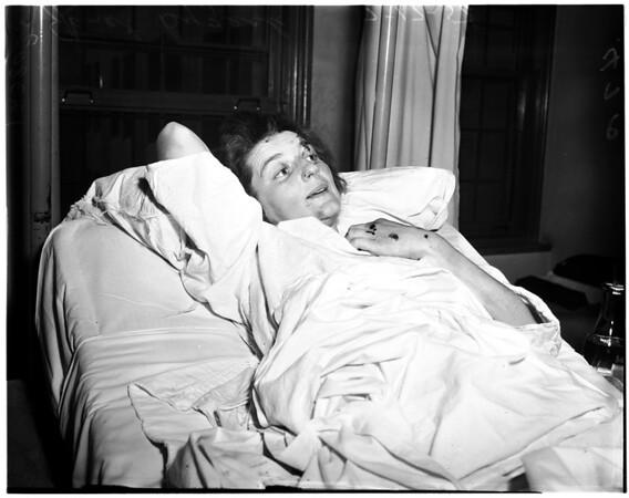 Girl ran over with car by boyfriend in jealous rage, 1958