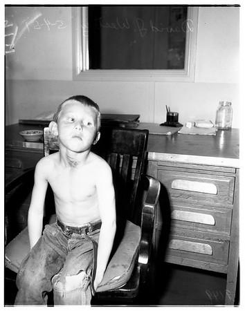 Abused child, 1951