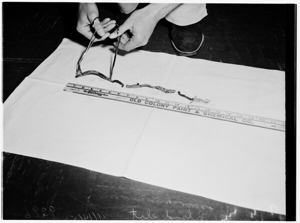 Blood clot surgery, 1951