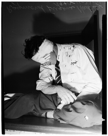 Assault...had half of ear bitten off after argument in gin mill, 1951