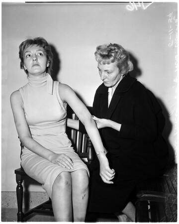 Cigarette girl beaten by Sinatra, 1959