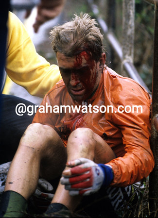 NEIL STEPHENS AFTER A CRASH IN THE 1985 MILAN SAN REMO