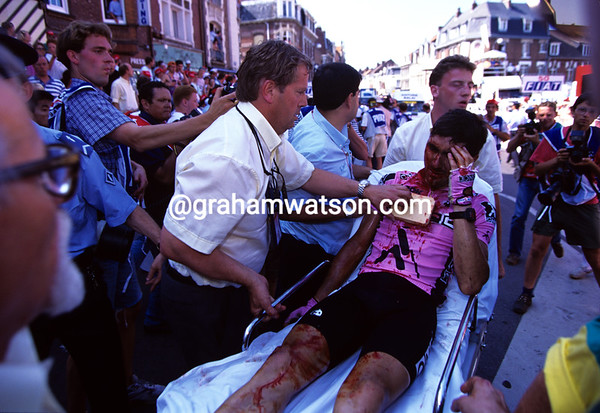 A Bloodied Hero - Laurent Jalabert is carried away by doctors after a spectacular crash at Armentiéres in 1994.