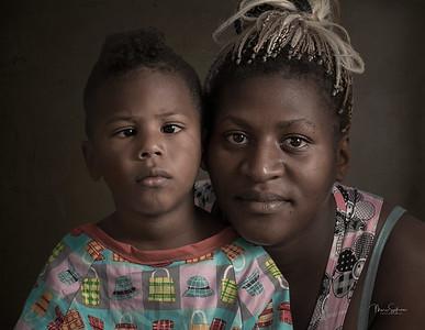 Children with Strabismus - Hospital Leon Becerra , Ecuador