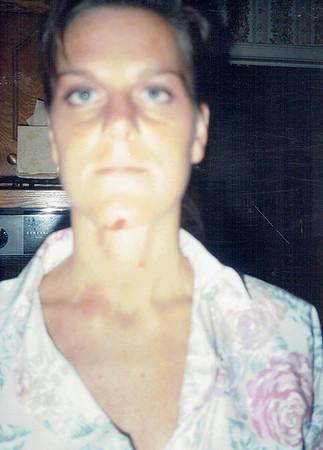 Car Wreck 1994