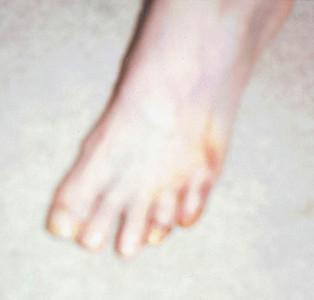 Foot Surgery - Dec. 1997