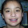 Mei's braces