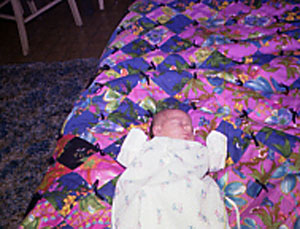 Kristina in first week of life.