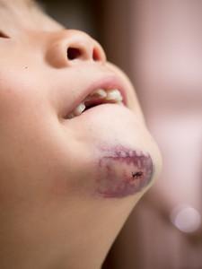 Nolan's first stitches