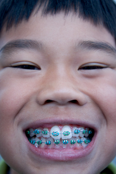 After several weeks of wearing the head gear, Andrew finally got his new braces in. Andrew wanted me to take before and after pictures. Yes, the bands are green! Shamrock green to be exact.