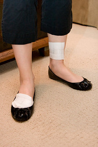 The bandages.