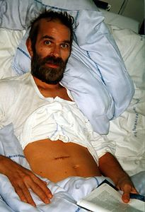 In bed showing one of his scars