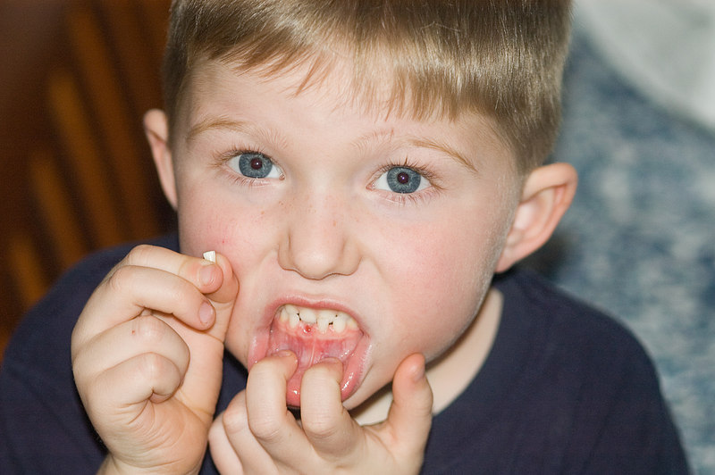 (1.14.2006)  Connor lost his first tooth.