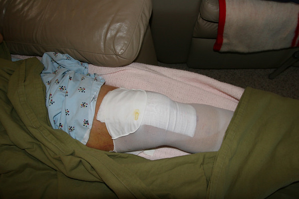 Curtis - Total Knee Replacement