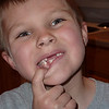 Hayden showing his missing teeth.  March 2010